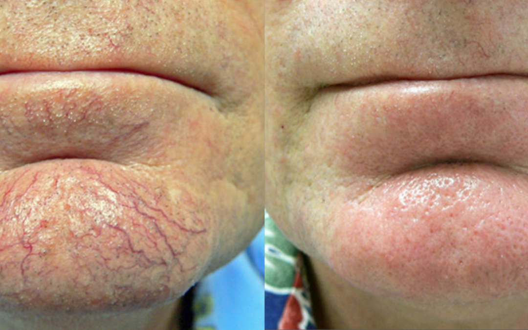 laser treatment before and after for veins