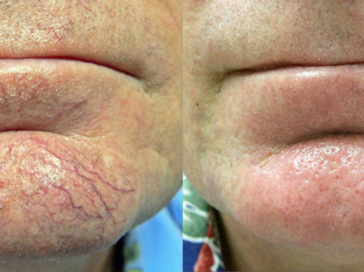 Pulse dye laser to treat visible vessels on chin