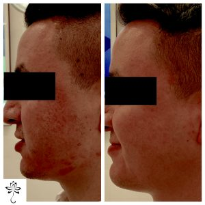 Post Acne Scarring Can Be Fixed Spring Street Dermatology
