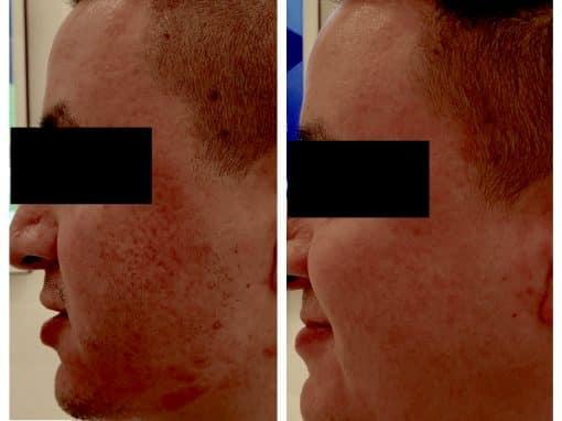 Microneedling to treat birthmark, skin discoloration