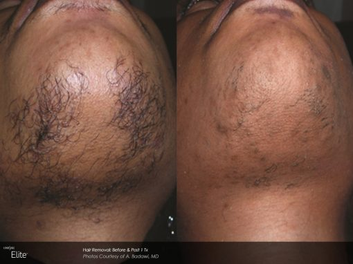 Laser hair removal to treat skin under the chin