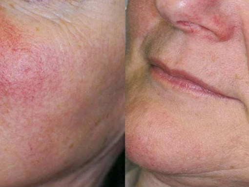 Facial to treat skin redness