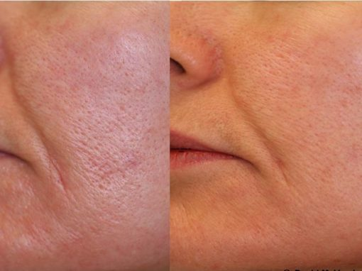 Aesthetic treatment to reduce pore size