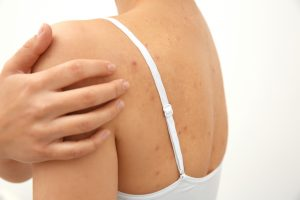 What To Do About Back Acne Spring Street Dermatology