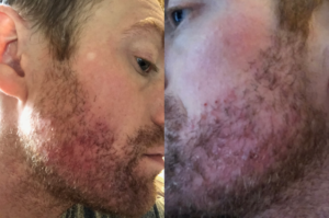 accutane acne medication in new york