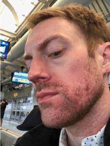 accutane acne medicine in new york