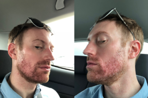accutane acne patient in new york