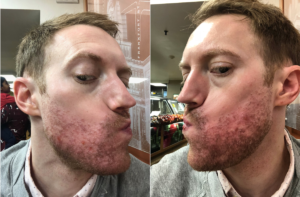 accutane acne treatment results in new york