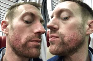 accutane acne dermatologist in new york