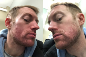 accutane before and after results in new york