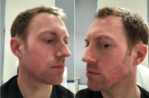 accutane patient before and after results in new york