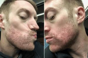 accutane acne skin treatment in new york