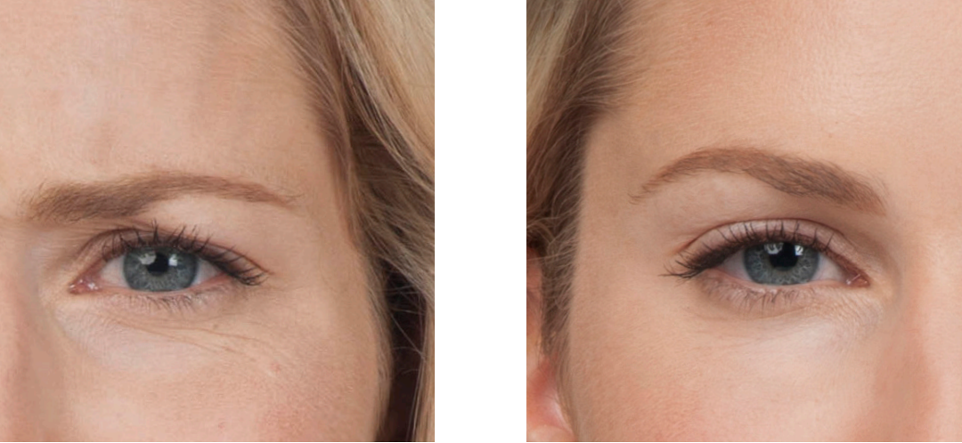 botox injections in new york