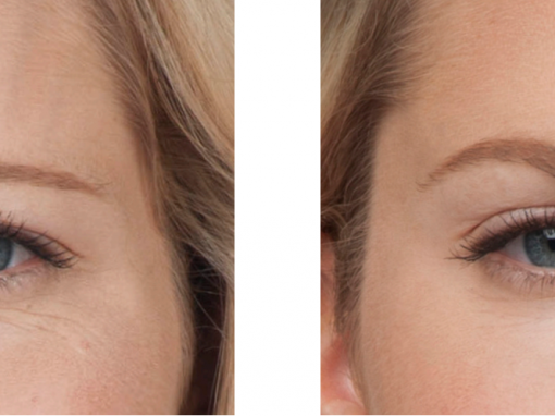 Botox to treat glabellar lines between the eyebrows