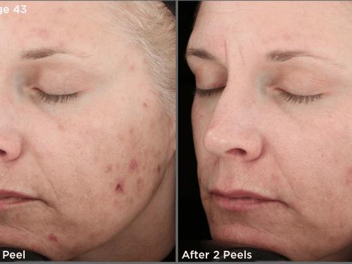 Chemical peel to treat skin breakouts