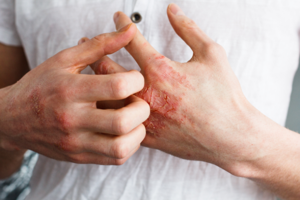 Also called atopic dermatitis, eczema is a common skin condition characterized by itchy and inflamed patches of dry, scaly red skin.