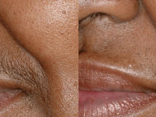 Laser hair removal for hair above upper lip