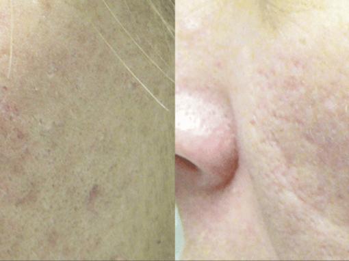 Laser resurfacing to treat acne scarring