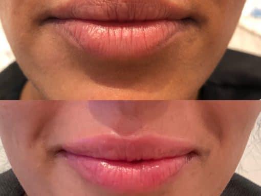 Lip filler to enhance the lips