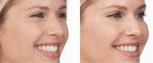 botox wrinkle treatment in NYC, NY