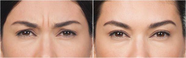 Botox for forehead wrinkles