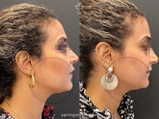 Ultherapy To Lift The Chin