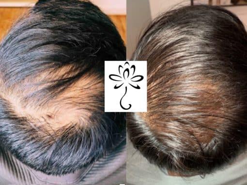 Hair restoration using microneedling