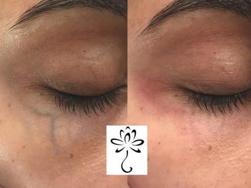 Laser treatment to remove vein under the eye