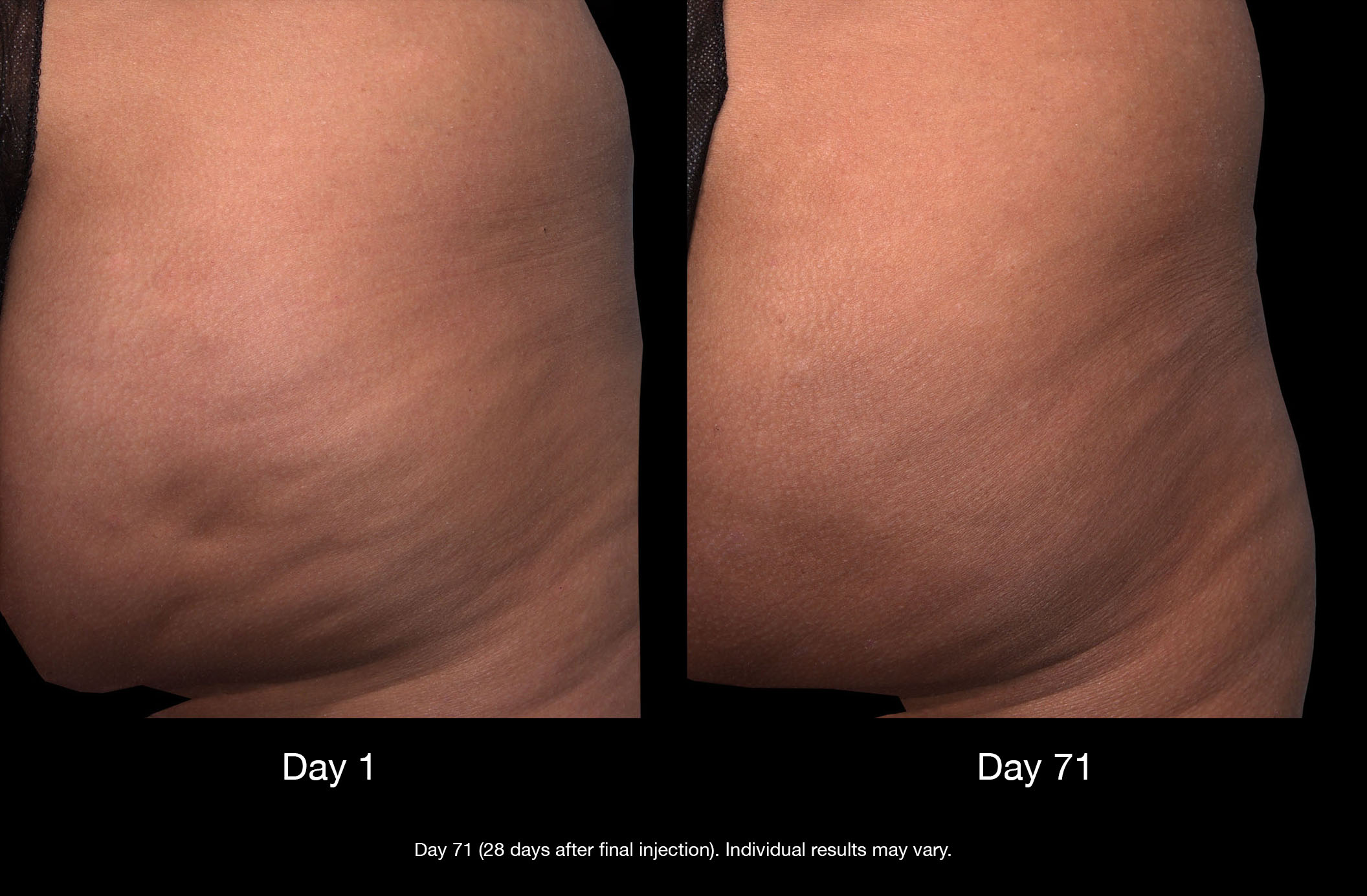 qwo cellulite treatment results in New York City