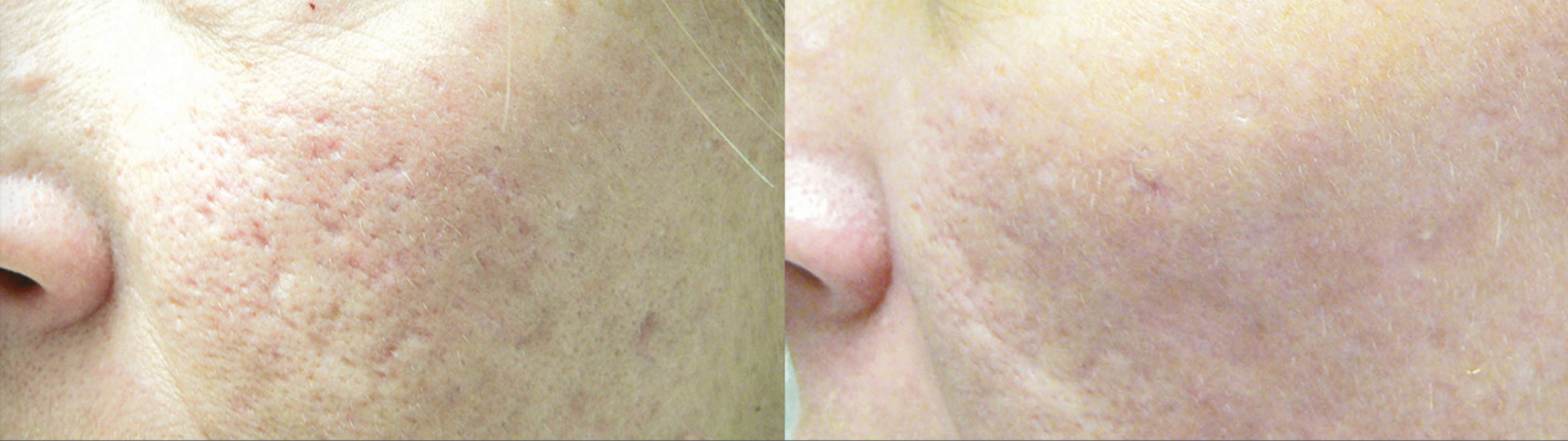image of LaseMD device which is now available at Spring Street Dermatology in NYC